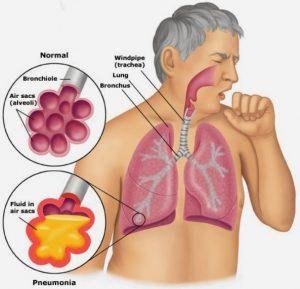 penderita-pneumonia