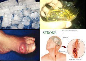 stroke-asam-urat